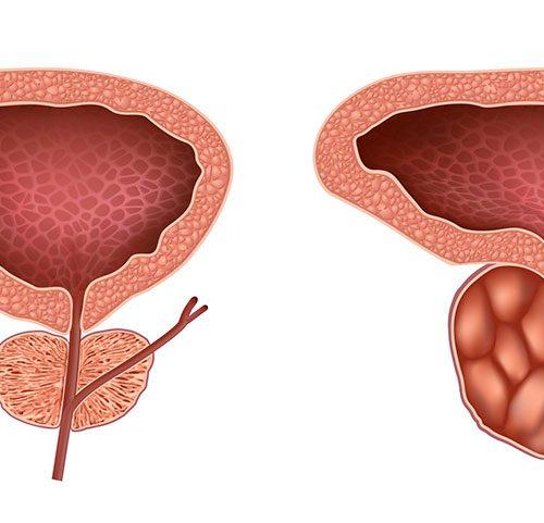 Tratamentul pacienților cu adenom de prostată (hiperplazie benignă de prostată)