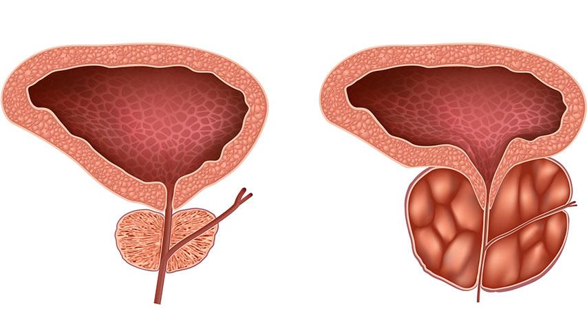 planta medicinal pentru adenom próstata